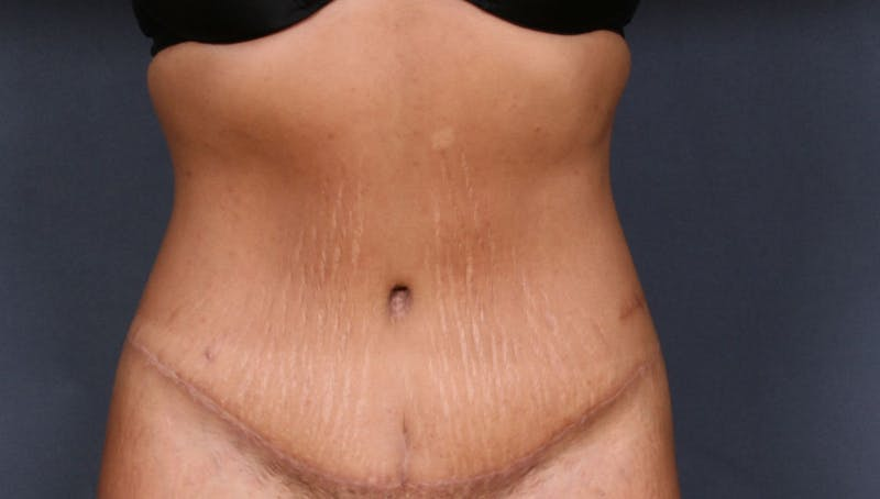 Body Lift Gallery - Patient 42751418 - Image 2