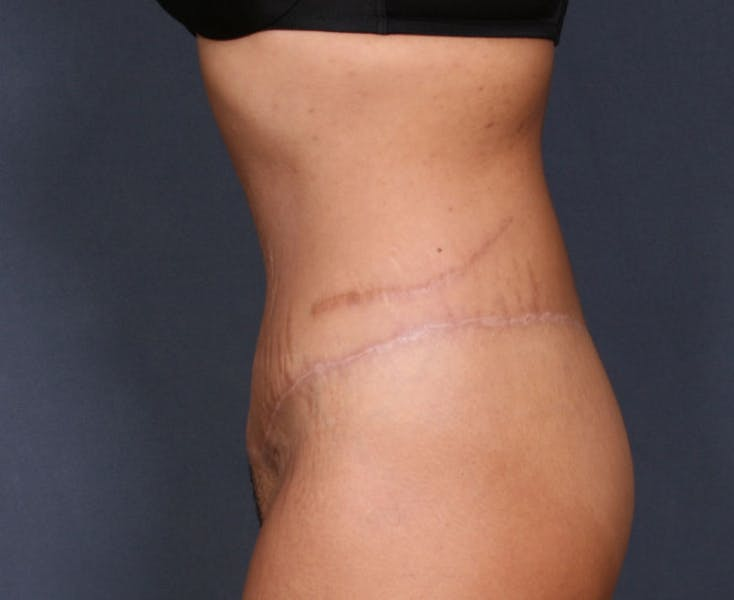 Body Lift Gallery - Patient 42751418 - Image 6