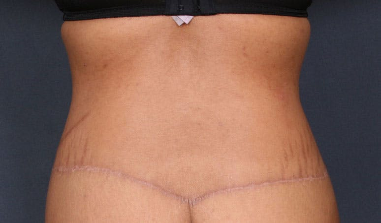 Body Lift Gallery - Patient 42751418 - Image 8
