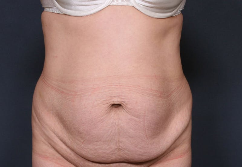 Body Lift Gallery - Patient 42751419 - Image 1