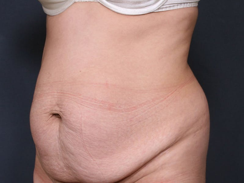 Body Lift Gallery - Patient 42751419 - Image 3