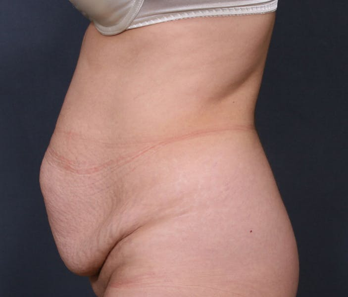 Body Lift Gallery - Patient 42751419 - Image 5