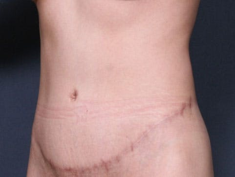 Body Lift Gallery - Patient 42751419 - Image 4