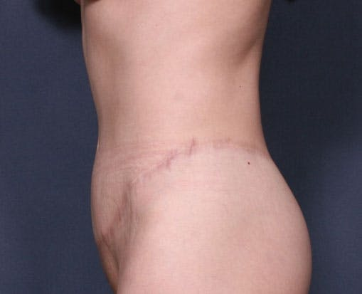 Body Lift Gallery - Patient 42751419 - Image 6