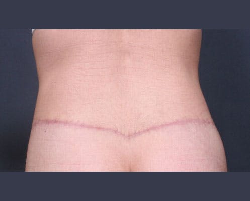 Body Lift Gallery - Patient 42751419 - Image 8