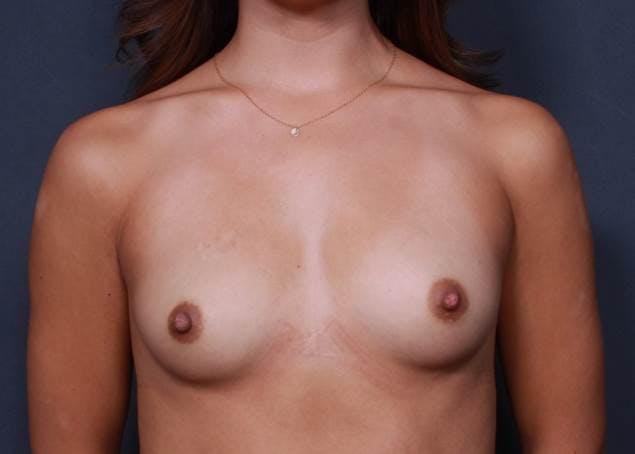 Breast Augmentation Gallery - Patient 42751423 - Image 1