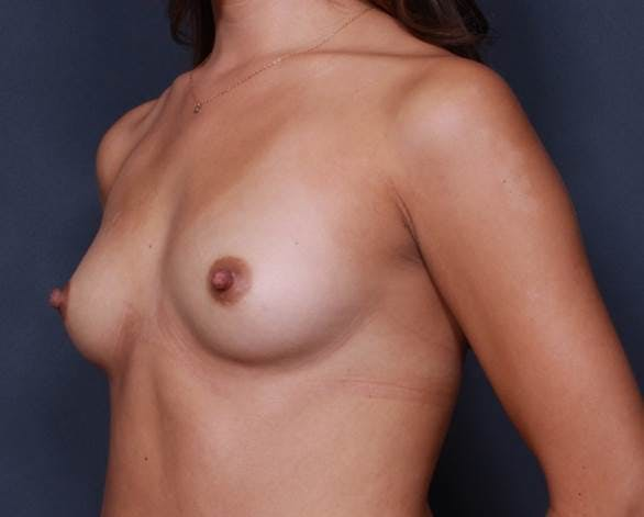 Breast Augmentation Gallery - Patient 42751423 - Image 3