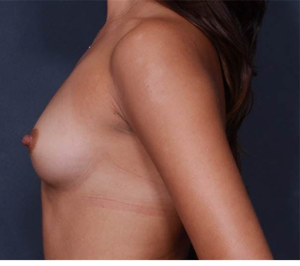 Breast Augmentation Gallery - Patient 42751423 - Image 5