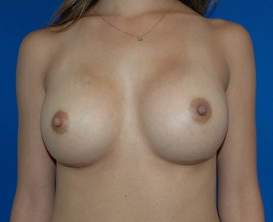 Breast Augmentation Gallery - Patient 42751423 - Image 2