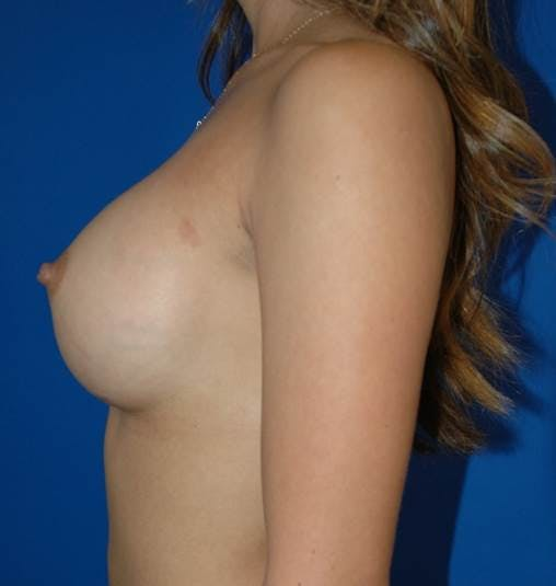 Breast Augmentation Gallery - Patient 42751423 - Image 6