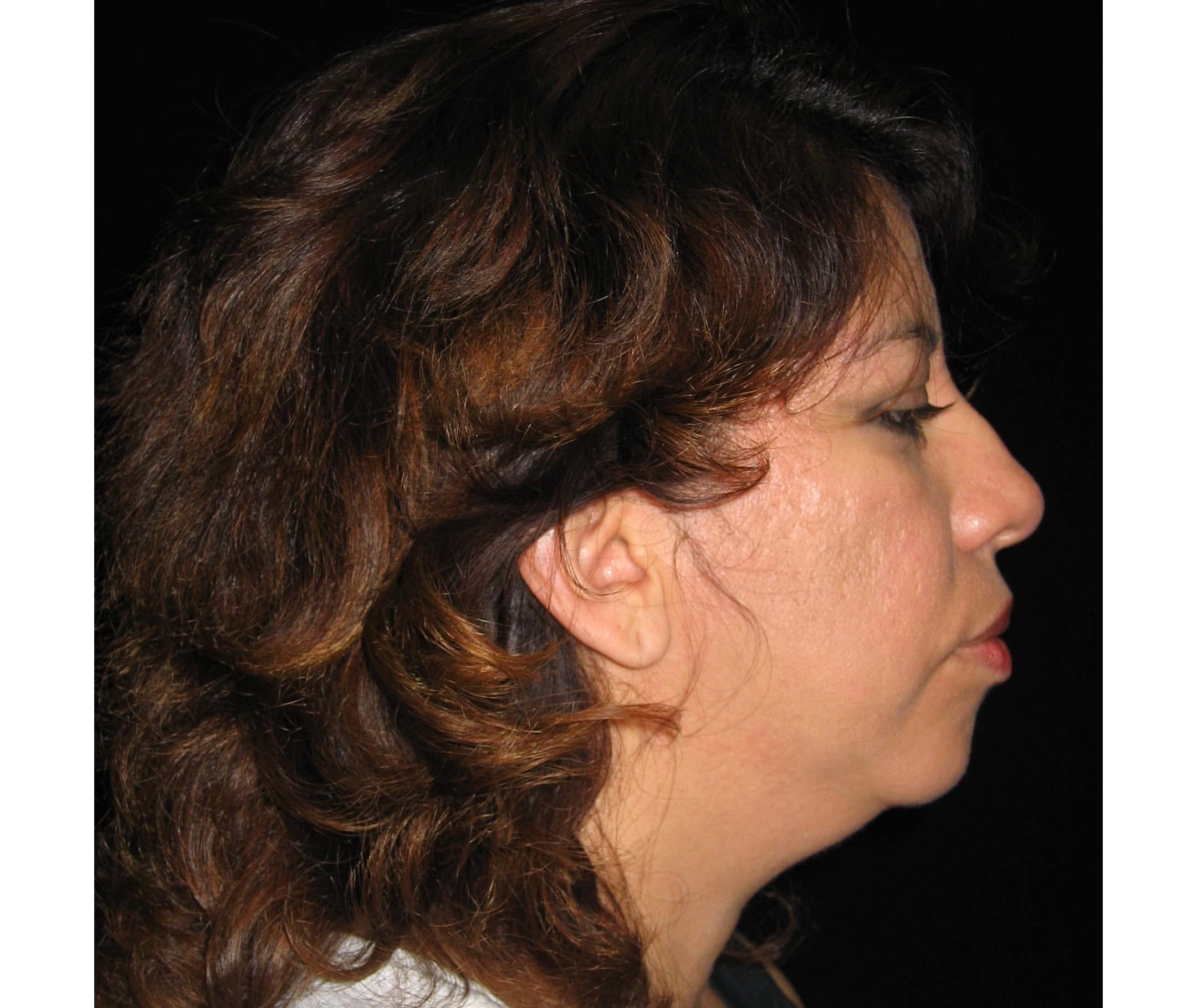 Chin Augmentation Gallery - Patient 42751427 - Image 3