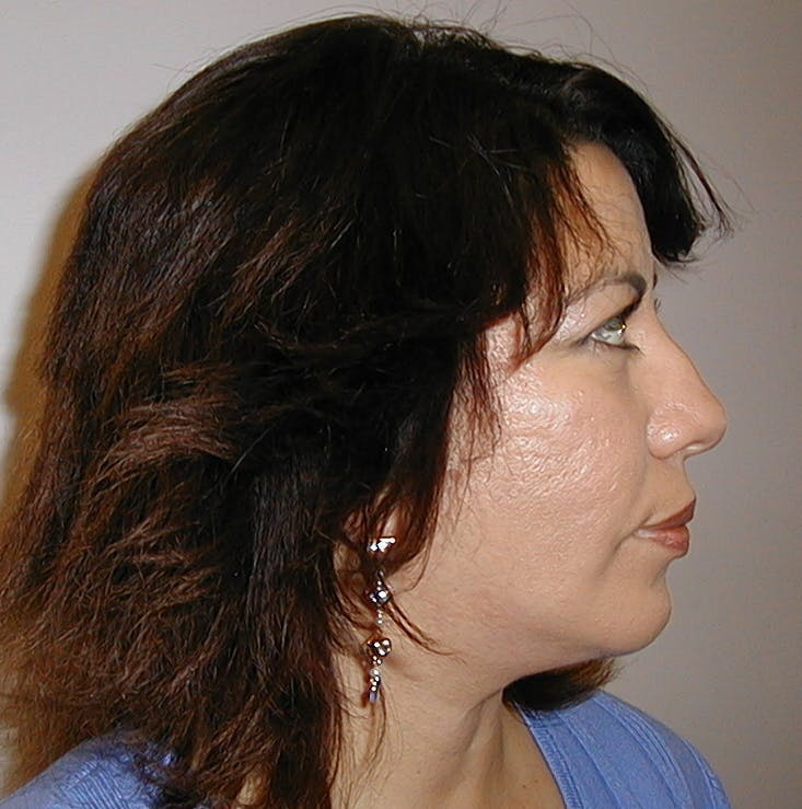 Chin Augmentation Gallery - Patient 42751427 - Image 4