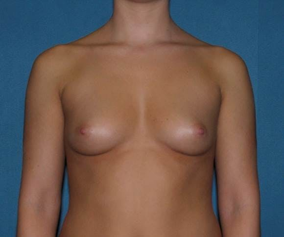 Breast Augmentation Gallery - Patient 42751431 - Image 1