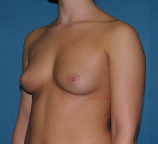 Breast Augmentation Gallery - Patient 42751431 - Image 3