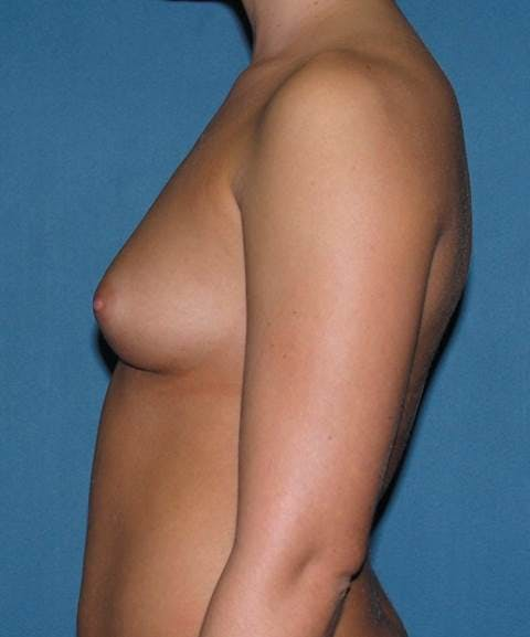Breast Augmentation Gallery - Patient 42751431 - Image 5