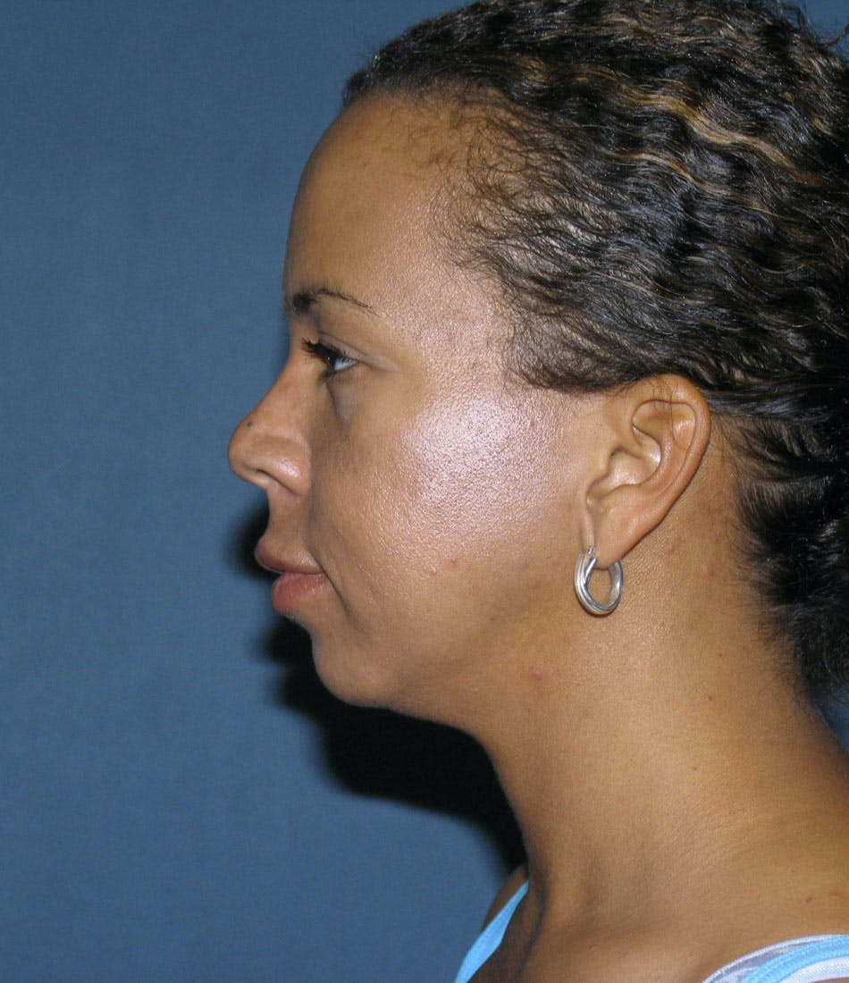 Chin Augmentation Gallery - Patient 42751430 - Image 1