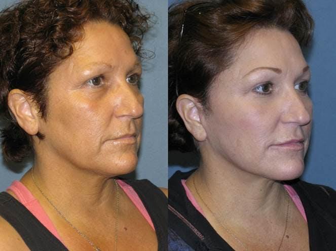 Facelift Gallery - Patient 42751429 - Image 2