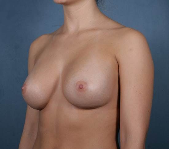 Breast Augmentation Gallery - Patient 42751431 - Image 4
