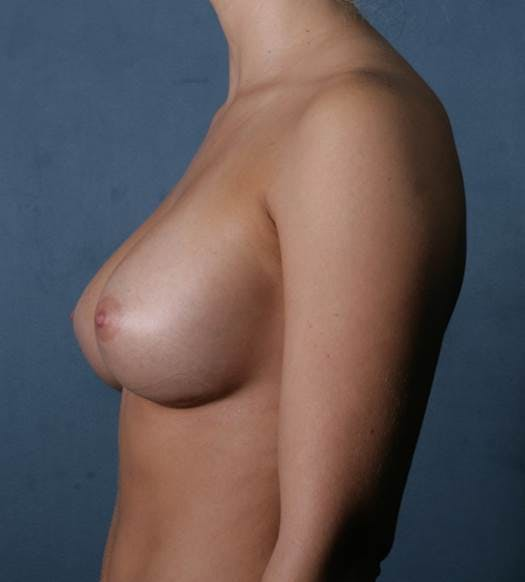 Breast Augmentation Gallery - Patient 42751431 - Image 6