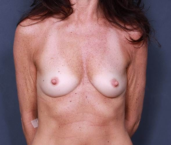 Breast Augmentation Gallery - Patient 42751438 - Image 1