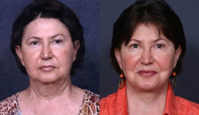 Facelift Gallery - Patient 42751433 - Image 1