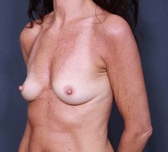 Breast Augmentation Gallery - Patient 42751438 - Image 3