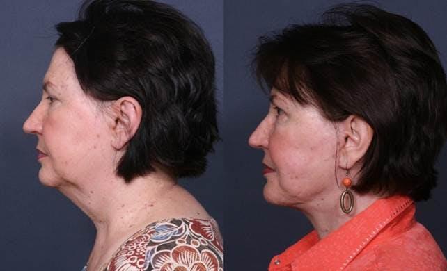 Facelift Gallery - Patient 42751433 - Image 2