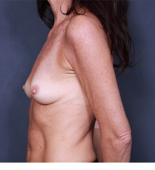 Breast Augmentation Gallery - Patient 42751438 - Image 5
