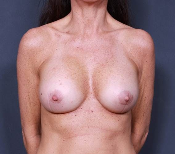Breast Augmentation Gallery - Patient 42751438 - Image 2