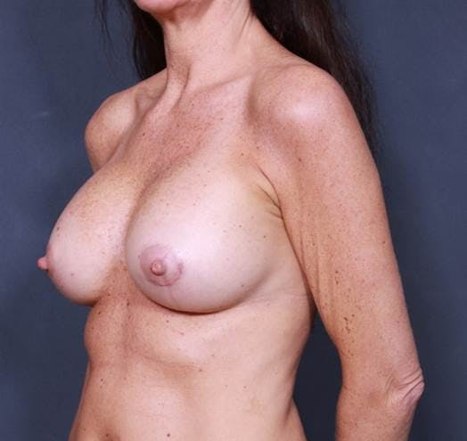 Breast Augmentation Gallery - Patient 42751438 - Image 4