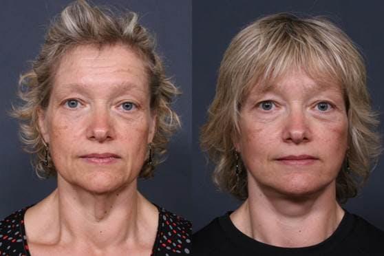 Facelift Gallery - Patient 42751437 - Image 1