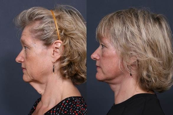 Facelift Gallery - Patient 42751437 - Image 2