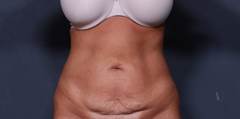 Tummy Tuck Gallery - Patient 42751446 - Image 1