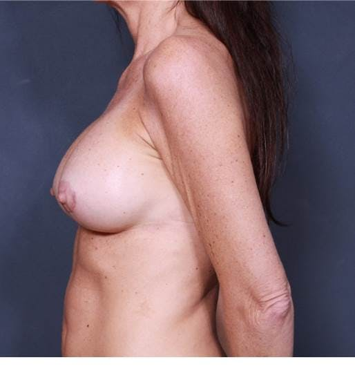 Breast Augmentation Gallery - Patient 42751438 - Image 6