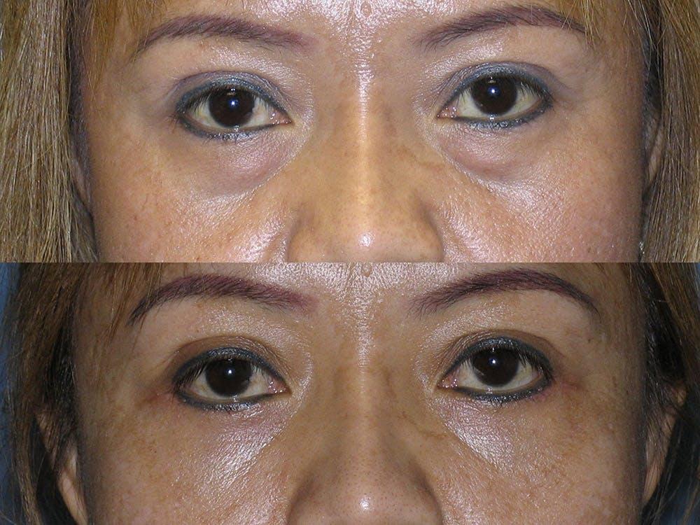 Facelift Gallery - Patient 42751441 - Image 1