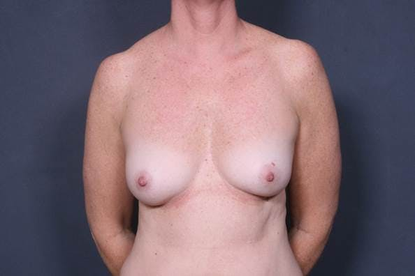 Breast Augmentation Gallery - Patient 42751445 - Image 1
