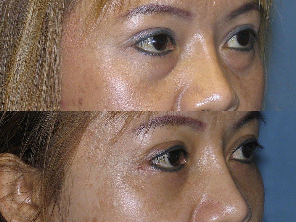 Facelift Gallery - Patient 42751441 - Image 2