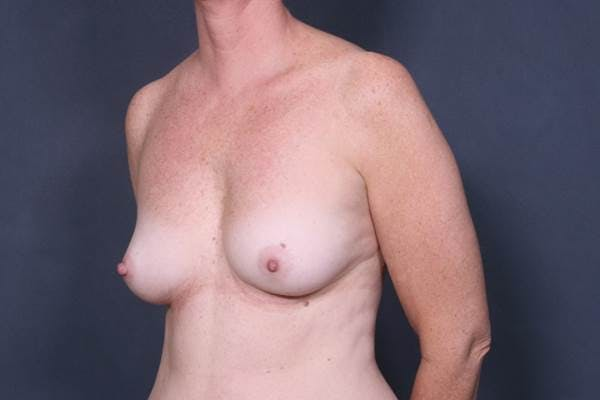 Breast Augmentation Gallery - Patient 42751445 - Image 3
