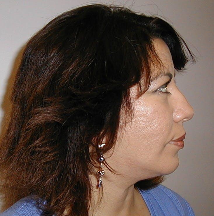 Facial Sculpting Gallery - Patient 42751443 - Image 4