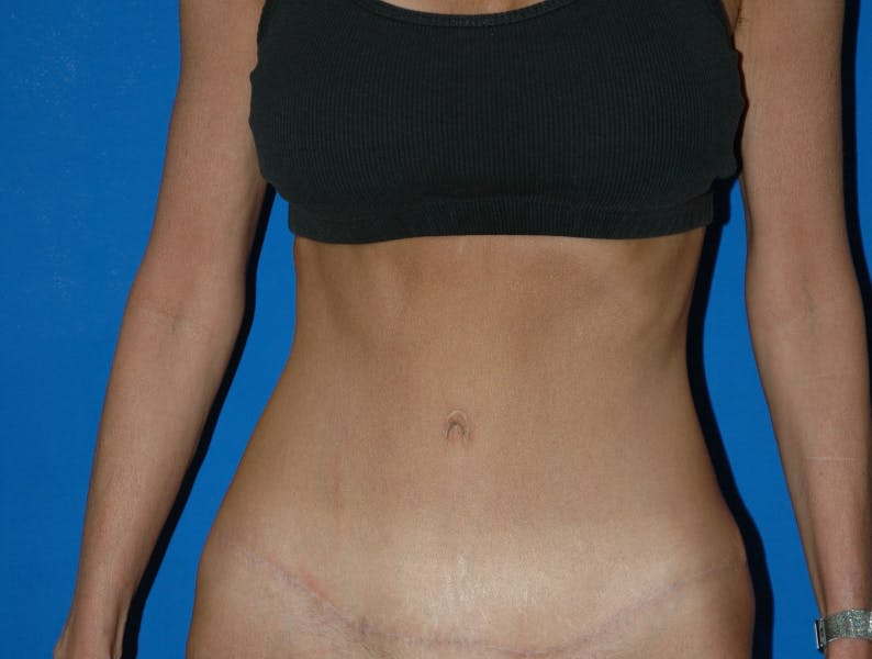 Tummy Tuck Gallery - Patient 42751446 - Image 2