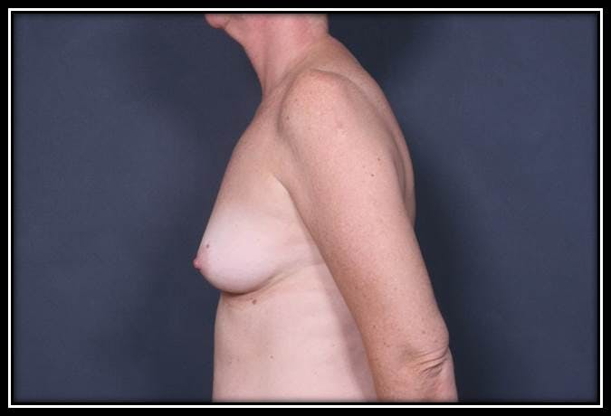 Breast Augmentation Gallery - Patient 42751445 - Image 5