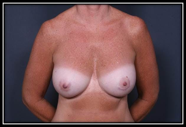 Breast Augmentation Gallery - Patient 42751445 - Image 2