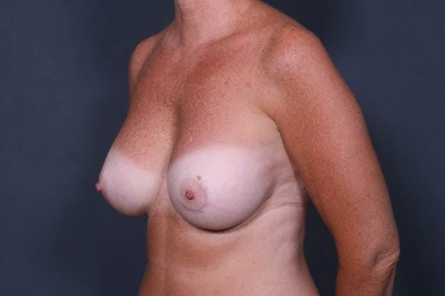 Breast Augmentation Gallery - Patient 42751445 - Image 4