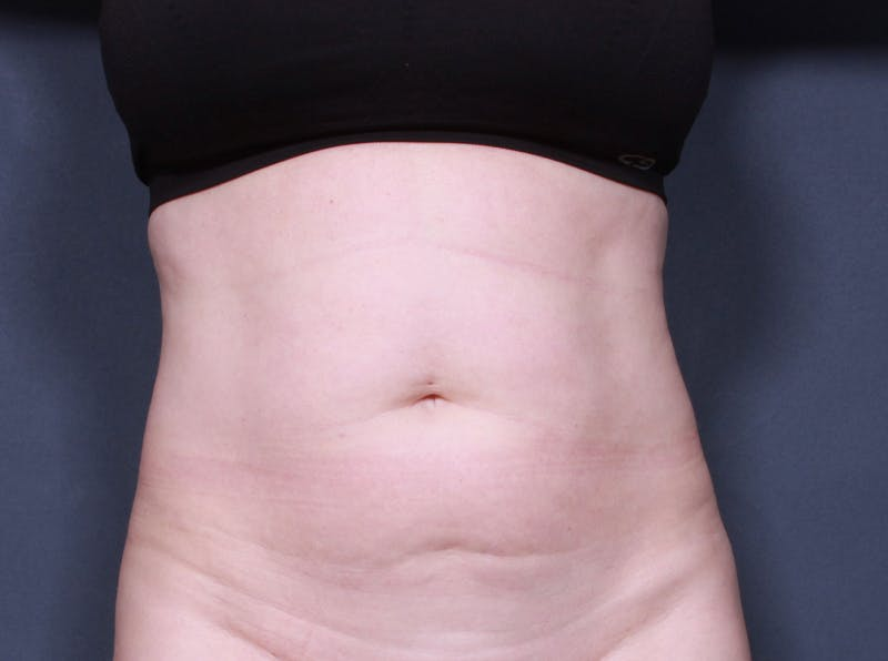 Tummy Tuck Gallery - Patient 42751453 - Image 1