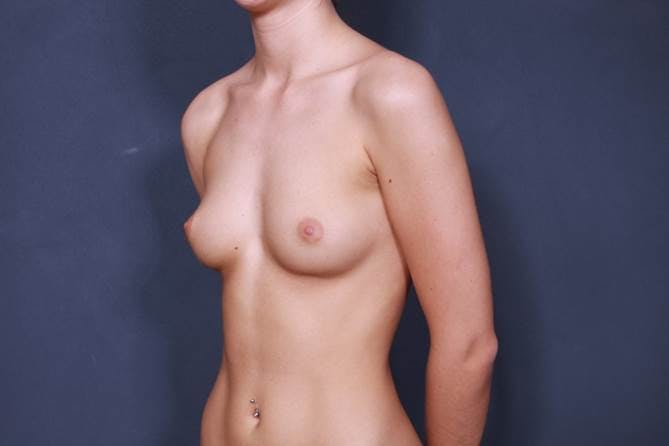 Breast Augmentation Gallery - Patient 42751451 - Image 3