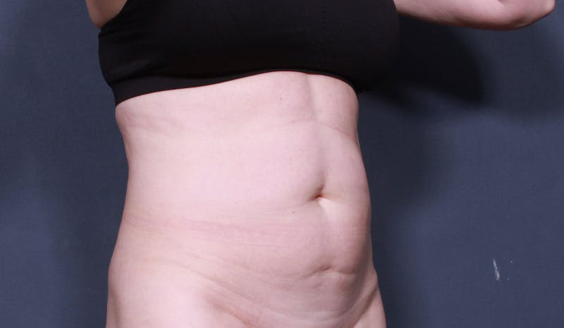 Tummy Tuck Gallery - Patient 42751453 - Image 3