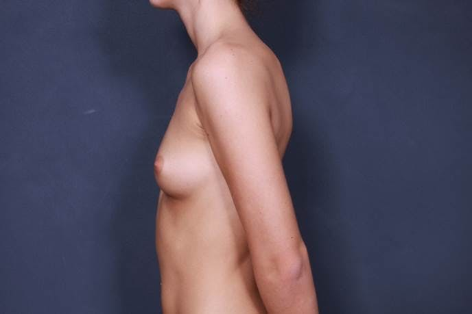 Breast Augmentation Gallery - Patient 42751451 - Image 5