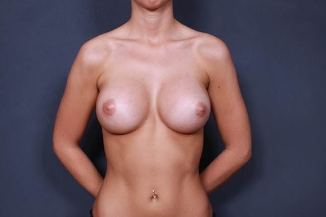 Breast Augmentation Gallery - Patient 42751451 - Image 2