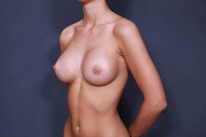 Breast Augmentation Gallery - Patient 42751451 - Image 4