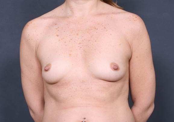 Breast Augmentation Gallery - Patient 42751456 - Image 1